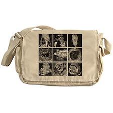 Fetal ultrasound images Messenger Bag