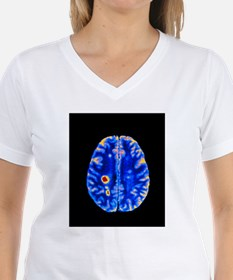 ain with multiple sclerosis - T-Shirt