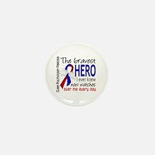 Pulmonary Fibrosis Bravest Mini Button (100 pack)