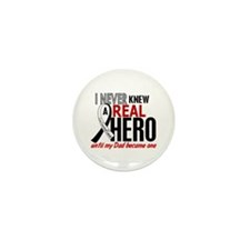 Carcinoid Cancer Real Hero Mini Button (100 pack)