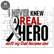 Carcinoid Cancer Real Hero 2 Puzzle