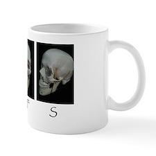 OMFS surgery skull Mug