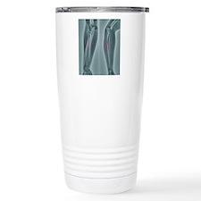 Broken arm, X-ray Travel Coffee Mug