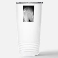 Broken shoulder, X-ray Stainless Steel Travel Mug