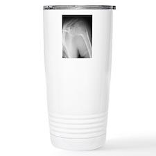 Broken shoulder, X-ray Travel Mug