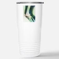 Broken knee, X-ray Travel Mug