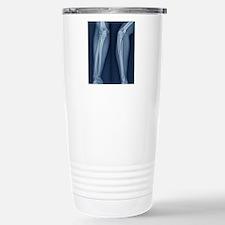 Broken arm, X-ray Travel Mug
