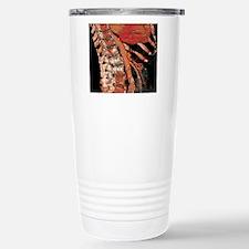Abdominal aorta and spi Travel Mug
