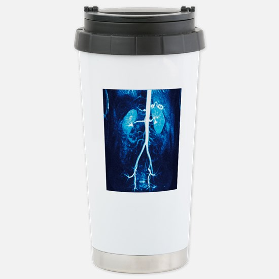Normal renal arteries,  Stainless Steel Travel Mug