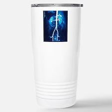 Normal renal arteries,  Travel Mug