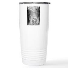 Ulcerative colitis, X-r Travel Mug