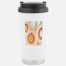 Hair follicles, light m Travel Mug