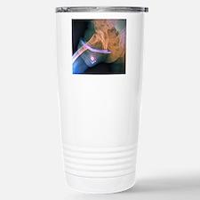 Penis prosthesis with p Travel Mug