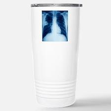 Lung abscess, X-ray Travel Mug