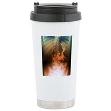 Gastric bypass surgery, Travel Coffee Mug