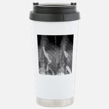 Gastric bypass surgery, Stainless Steel Travel Mug