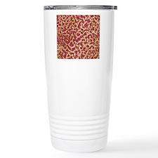Kidney stone crystals,  Travel Mug
