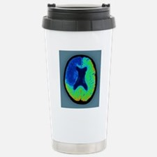 Cerebral stroke, CT sca Stainless Steel Travel Mug