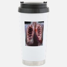 Aortic aneurysm, X-ray Stainless Steel Travel Mug