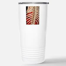 Aortic aneurysm CT scan Stainless Steel Travel Mug