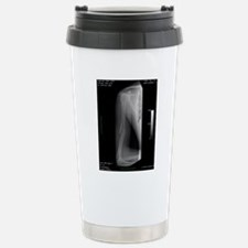 Broken arm bone, digita Travel Mug