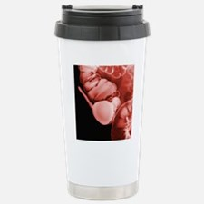 X-ray of appendix Stainless Steel Travel Mug