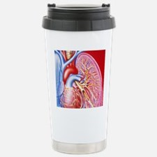 Bronchitis Stainless Steel Travel Mug