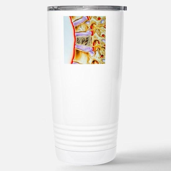 Osteoporitic spine Stainless Steel Travel Mug