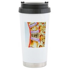 Osteoporitic spine Travel Mug