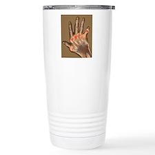 Arthritic hand, X-ray Travel Mug