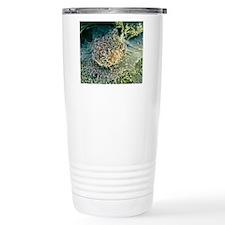 Bone cancer cell, SEM Travel Mug