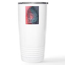 Breast cancer Travel Mug
