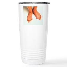 Bunions Travel Coffee Mug