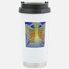 Chronic bronchitis, X-r Stainless Steel Travel Mug