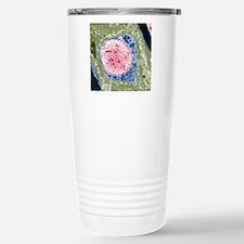 Demyelinated nerve, TEM Travel Mug