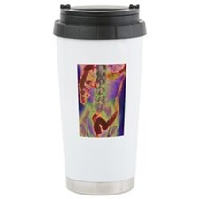 Crohn's disease, X-ray Travel Mug