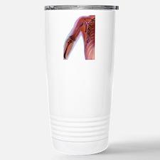 Fractured shoulder, X-r Travel Mug