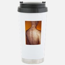 Acupuncture model Stainless Steel Travel Mug