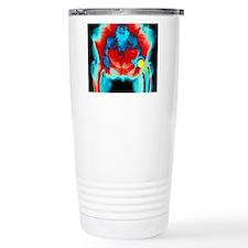 Coloured X-ray of an ar Travel Mug
