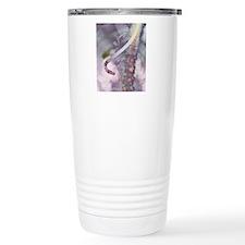 Gallstones, X-ray Travel Mug