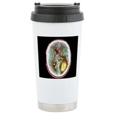 Glioma brain cancer, CT Travel Mug