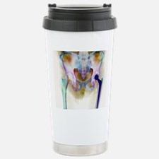 Hip joint replacement,  Travel Mug