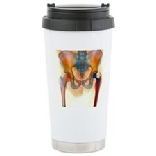 Hip joint replacement,  Travel Coffee Mug