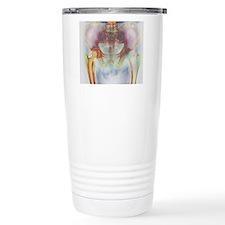 Hip replacement, X-ray Travel Mug