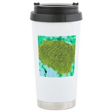 Human papilloma virus p Travel Mug