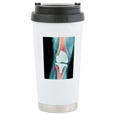 Knee joint prosthesis,  Travel Mug