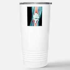 Knee joint prosthesis,  Travel Mug