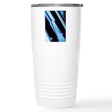 Lower leg fracture, X-r Travel Mug
