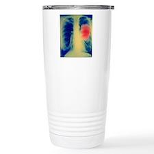 Lung cancer Travel Mug