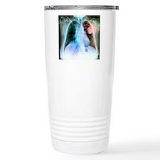 Lung cancer, X-ray Travel Mug